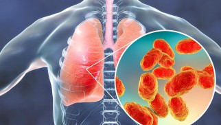 What is pneumonia and how is it treated?